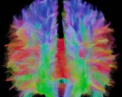 Connectome d'un cerveau humain